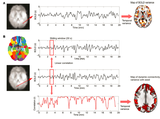 Dynamic Functional Connectivity in fMRI