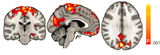 Hippocampal functional connectivity variance in TLE vs controls