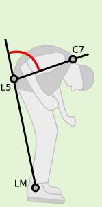 Total Camptocormia Angle