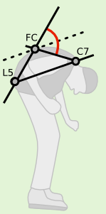 Upper Camptocormia Angle