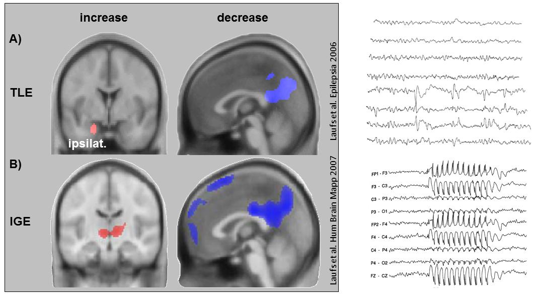 EEG_fMRI_consciousness_in_epilepsy