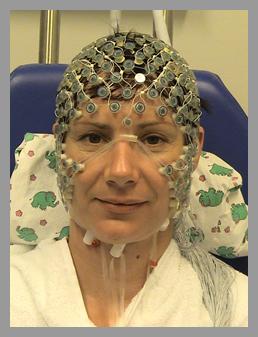 High-density Elektroencephalographie